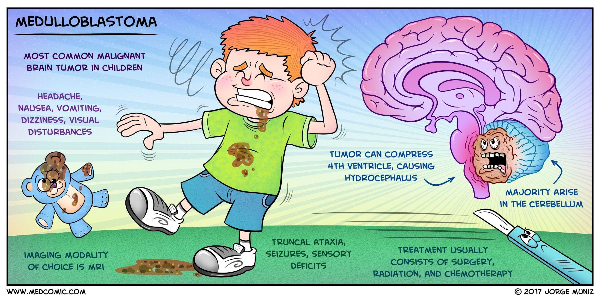 Medulloblastoma Medulloblastoma Is The Most Common Type Of