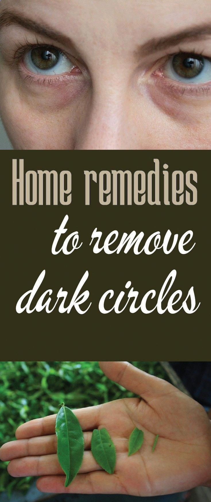 Home remedies to remove dark circles # ...
