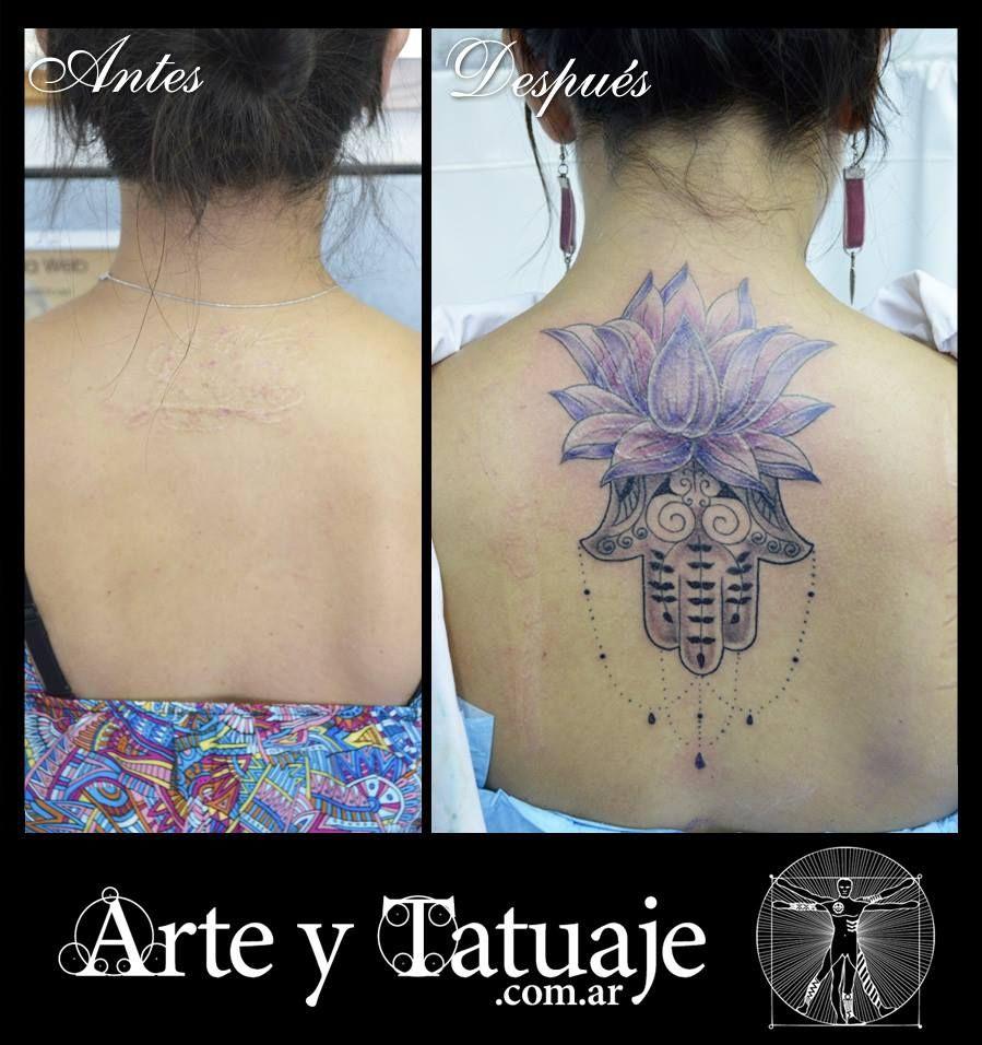 Tatuaje Sobre Cicatriz Producida Por El Laser Al Borrar Otro