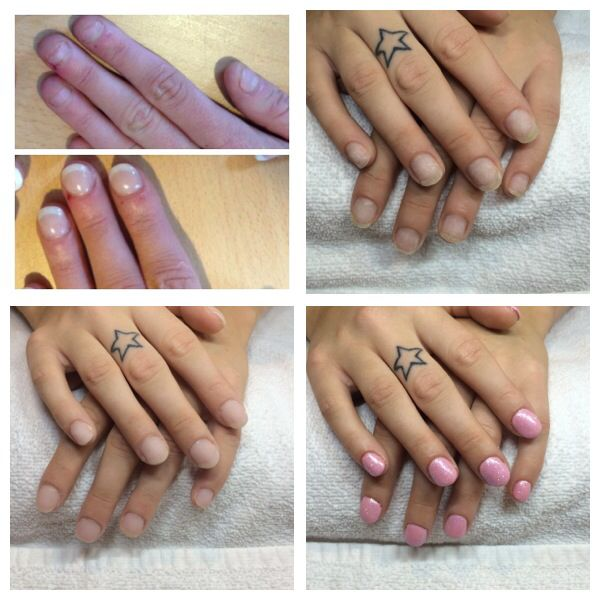 From very bitten Nails to healthy natural nails in 3 months. Helped ...