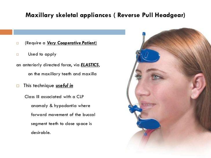 Image result for reverse pull headgear orthodontics