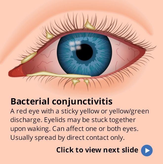 How To Get Rid Of Bacterial Pink Eye Naturally