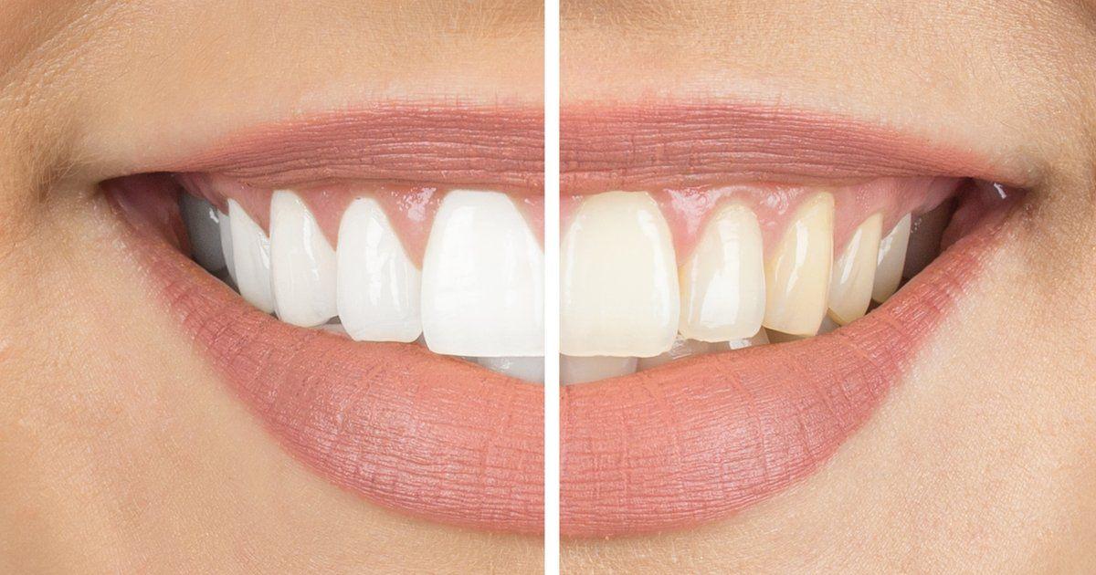 Zahnverfärbung Kaffee
