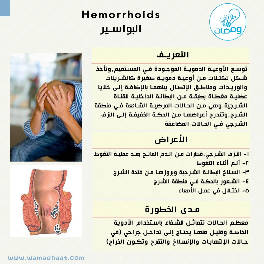 البواسير معانة حقيقية لكثير من الناس اعرف أكثر عنها المصدر Med Scape Com 2014 محمد خيري Wamadha Health And Beauty Hemorrhoids Health