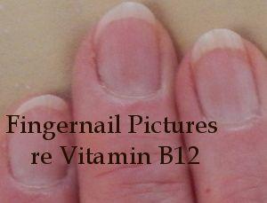 Photo of Fingernails - Text reads, Fingernail pictures re vitamin ...
