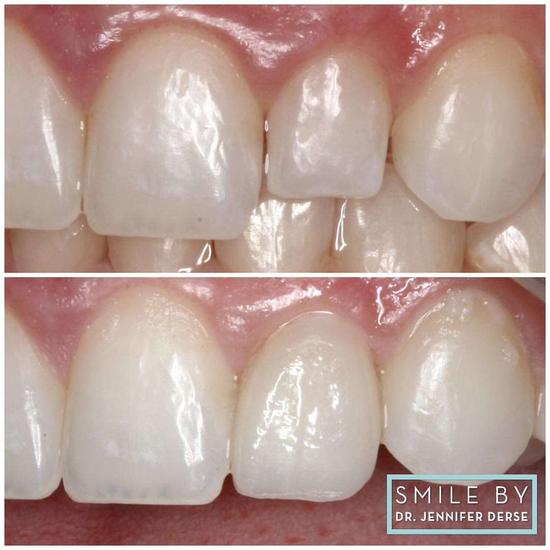 Little tooth? Little prep! No preparation no numbing veneer