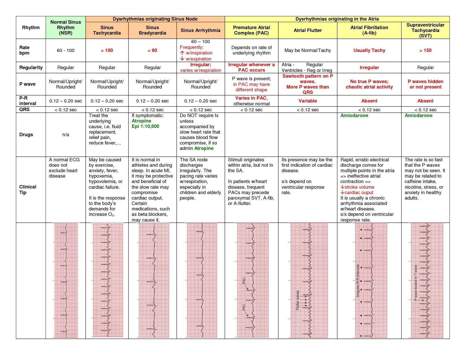 Chart Including Dysrhythmias Originating In The Sinus Node And Atria