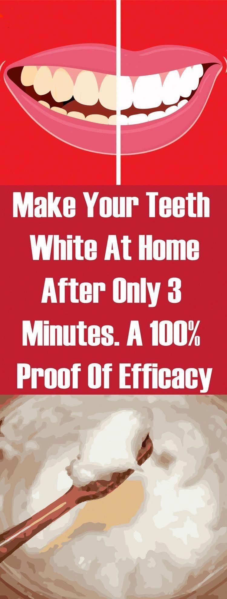 Make Your Teeth White At Home After Only 3 Minutes. A 100