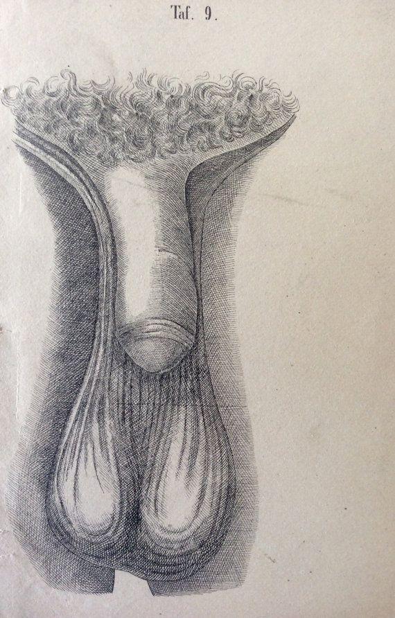 Antique Engraving Anatomy PENIS TESTICLE Disease Scrotum Bookplate ...