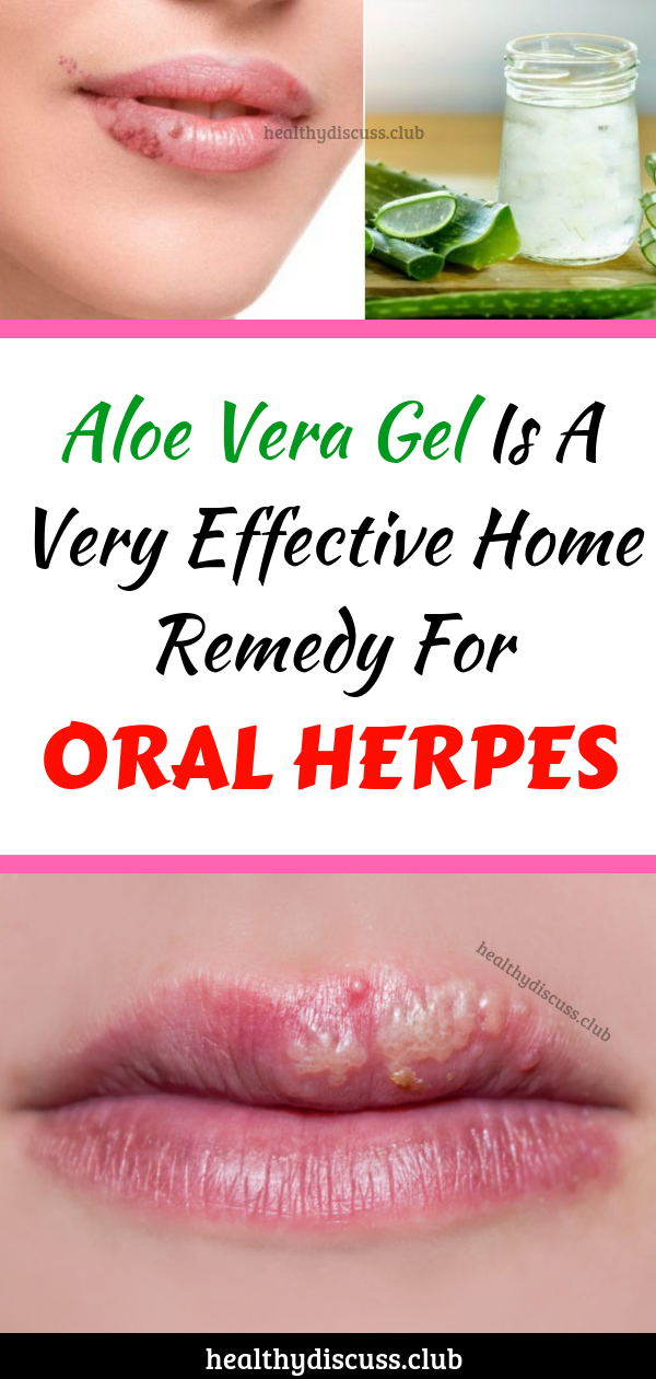 Aloe Vera Gel Is A Very Effective Home Remedy For Oral Herpes