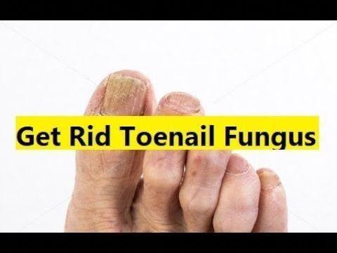 Nail Fungus Treatment Best #FungusLaserTreatmentCost  #LasikSurgery
