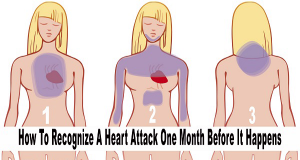 Be Careful: Your Body Alerts These 6 Symptoms One Month Before A Heart Attack!