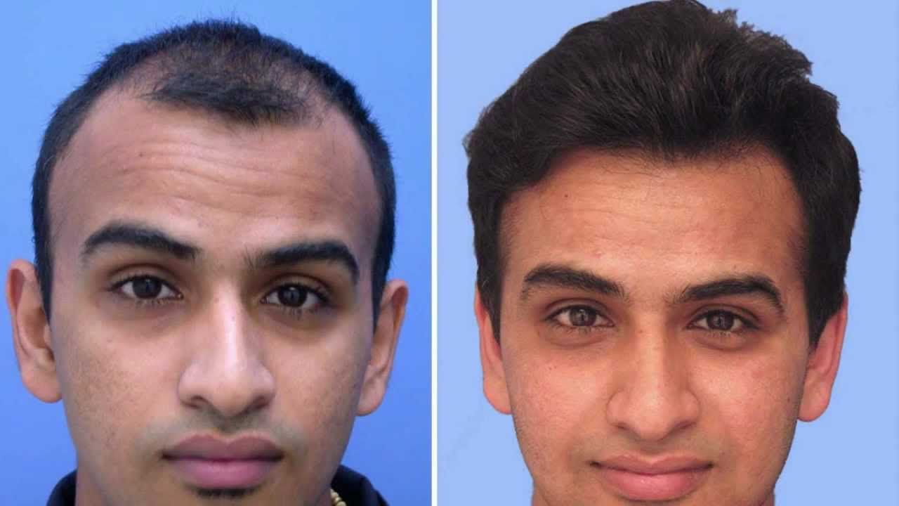 What to Expect After A Hair Transplant Surgery Gallery