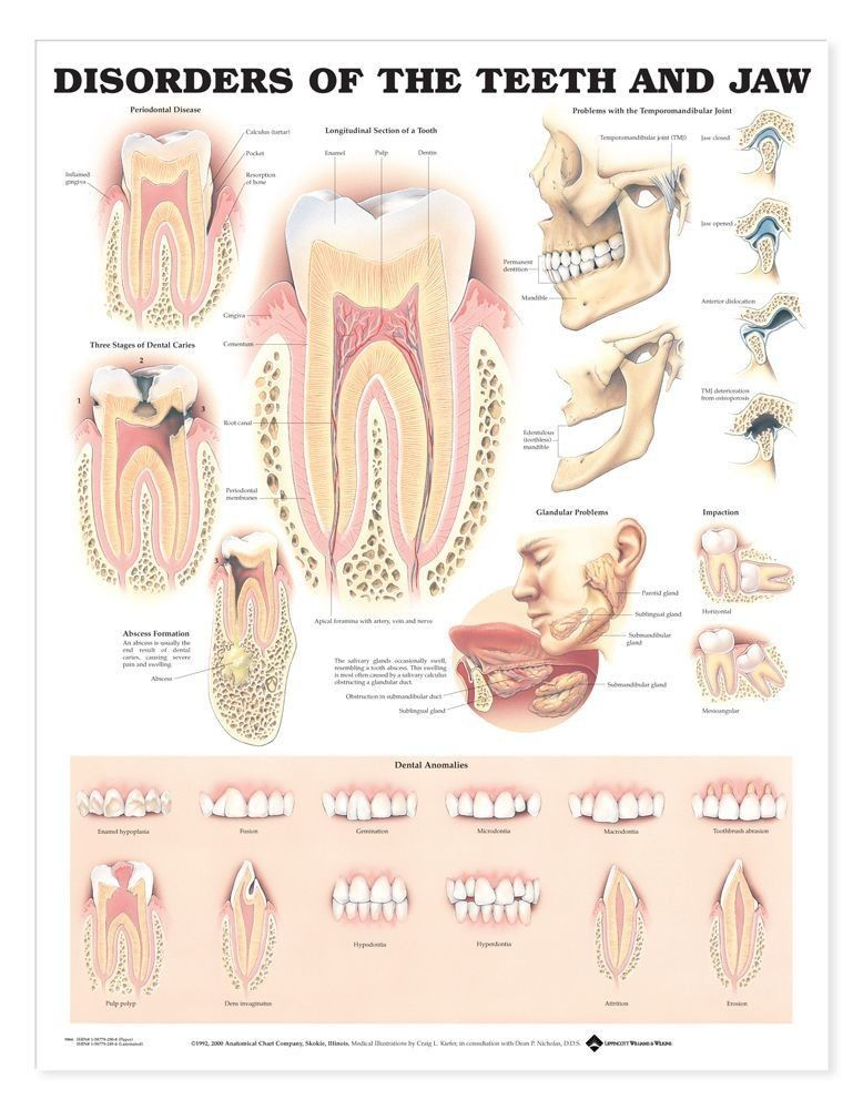 Disorders Of The Teeth And Jaw Anatomical Chart | 070_ ANATOMY ...