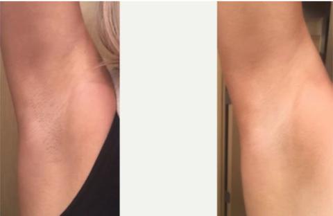 IPL Laser Hair Removal Handset | KetchBeauty