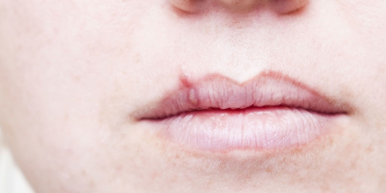 Cold sores  Netdoctor  Remedies for Herpes  Pinterest