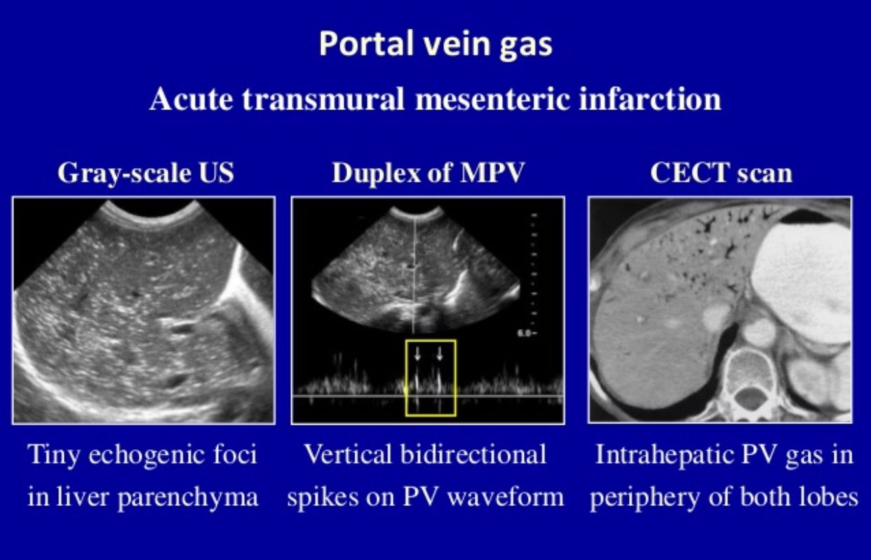 Portal vein gas | Vascular ultrasound, Ultrasound ...