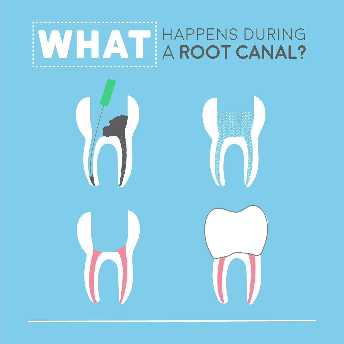 The steps of a root canal are easy to understand remove