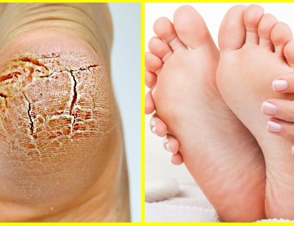 An effective remedy to make cracked heels smooth and beautiful #HomemadeMoisturizerForDrySkin #crackedskinonheels An effective remedy to make cracked heels smooth and beautiful #HomemadeMoisturizerForDrySkin #crackedskinonheels