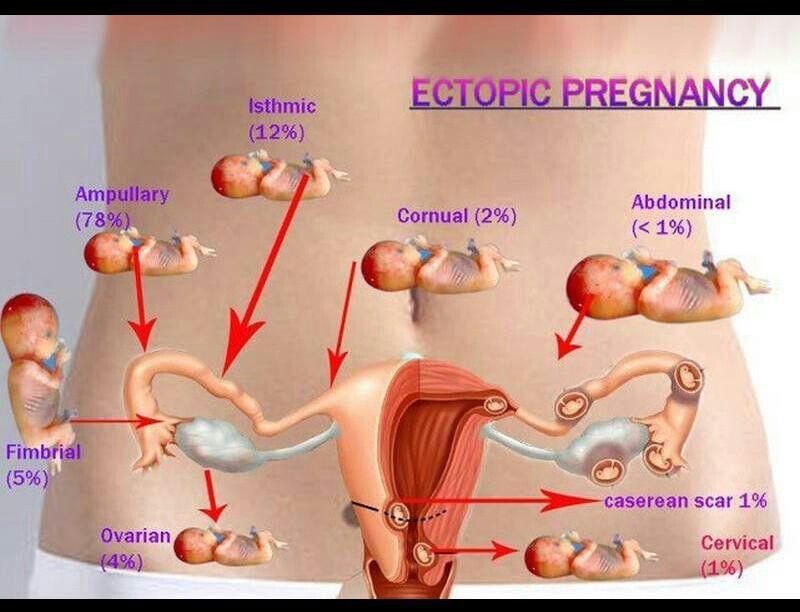 Pin by Kashish Sehrawat on medicine | Pinterest | Ectopic pregnancy ...