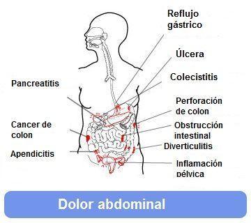 cancer inflamacion abdominal)