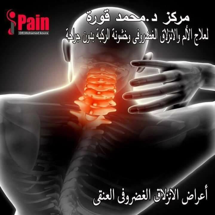 Pin On علاج الانزلاق الغضروفي