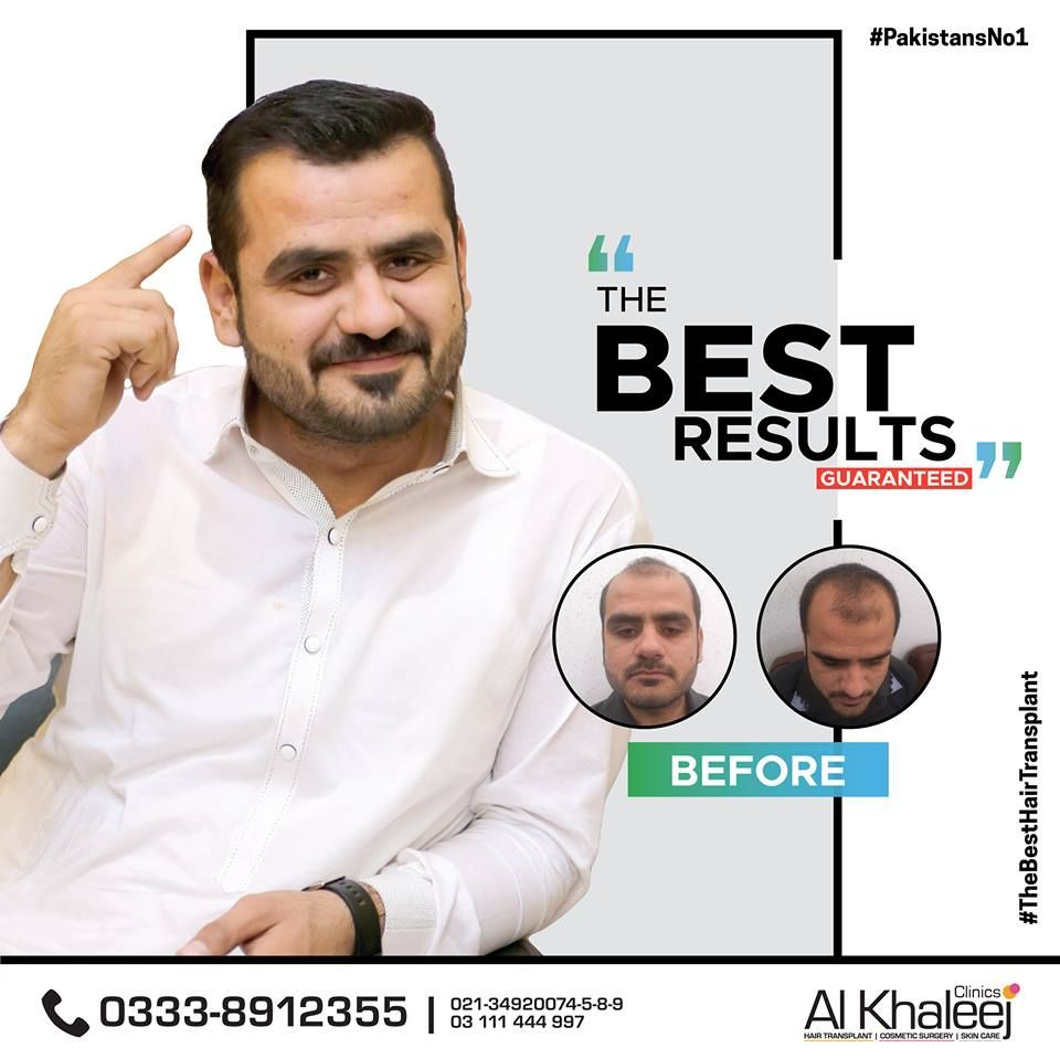 Best Hair Transplant In Pakistan Alkhaleej Clinics Website Http Www Alkhaleejclinics Com Best Hair Transp Best Hair Transplant Skin Clinic Cool Hairstyles