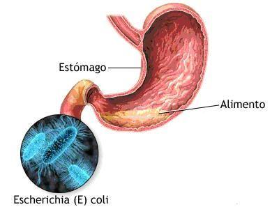 causas y consecuencias de la infeccion estomacal