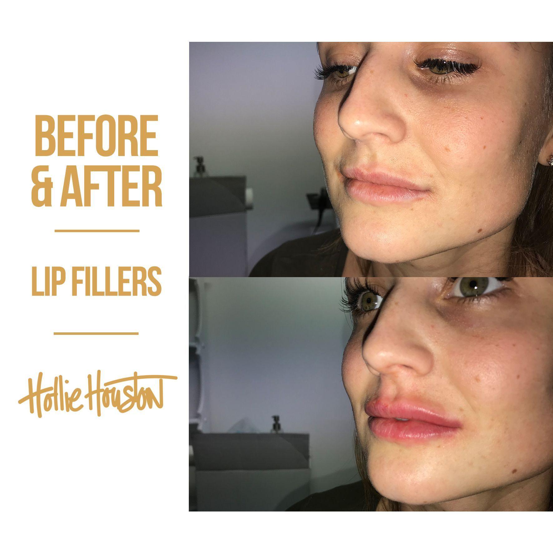 be1459458d0f5cad317546eb4ec7da0c - How To Get Swelling To Go Down On Lip