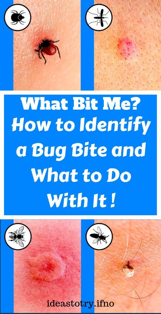 How to Identify a Bug Bite and What to Do With It !!! Health