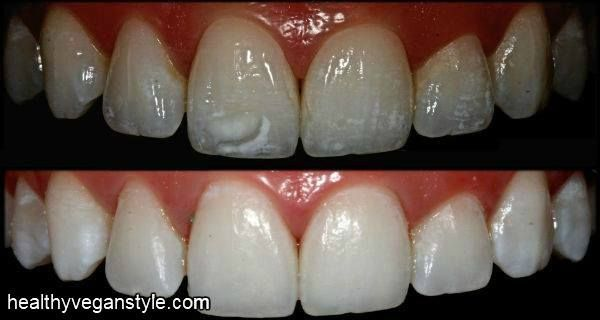 be1757bfaf84b320cbb4eddb4142c1e7 - How To Get Rid Of White Spot Lesions On Teeth