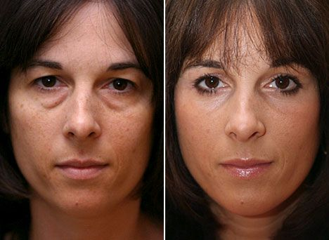 How Long Does Eye Bag Removal And Eyelid Surgery Take
