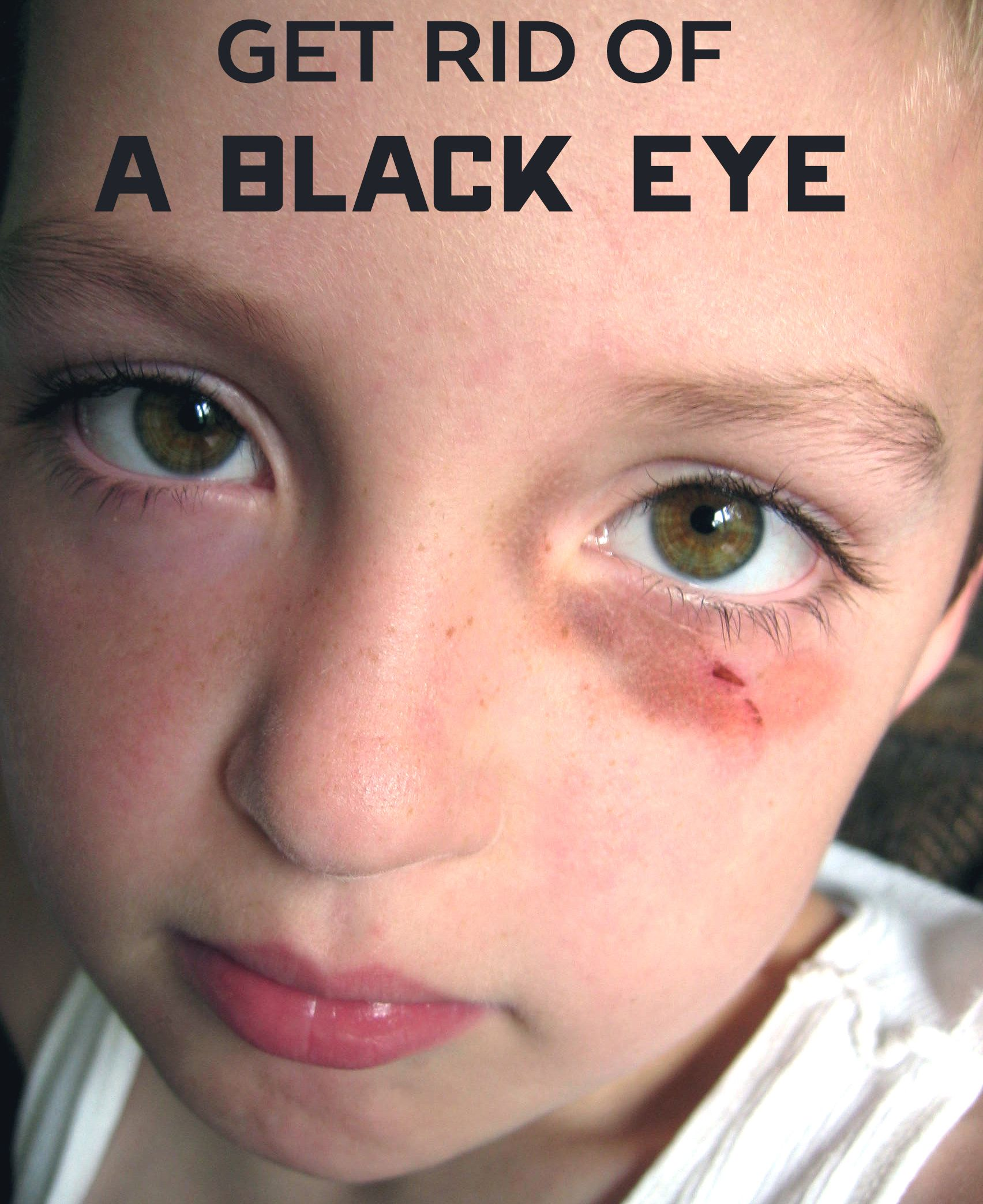 be17dae8dfcce5ea37bd1dca99c989e5 - How To Get Rid Of Swelling Black Eyes Fast