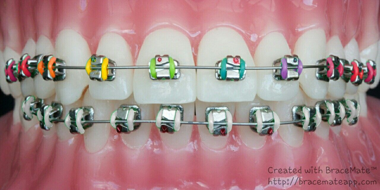 I❤ these rainbow braces | braces | Pinterest | Rainbow braces