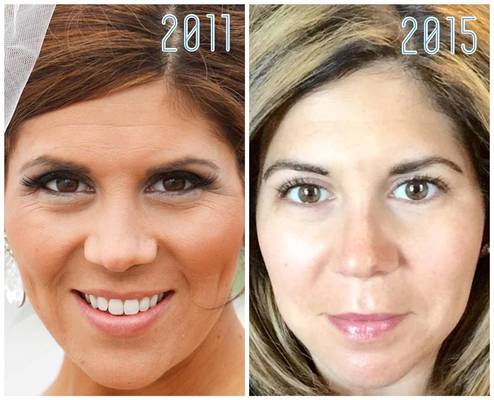 """Love Lia Agozzino Pickel's results!  """"I've been fortunate with my skin for most of my life... occasional breakouts, a bit of unevenness, and a touch of dermatitis around my nose (now long gone!). Foundation was my BFF for as long as I can remember. Zoom in on my wedding photo. Yikes! My forehead lines, crow's feet, and concealed chin blemishes.Not anymore! For me, R+F has given me a brighter, happier complexion. Proud to be foundation-free at 33!"""" #TransformationTuesday #MarrouCrew2015"""