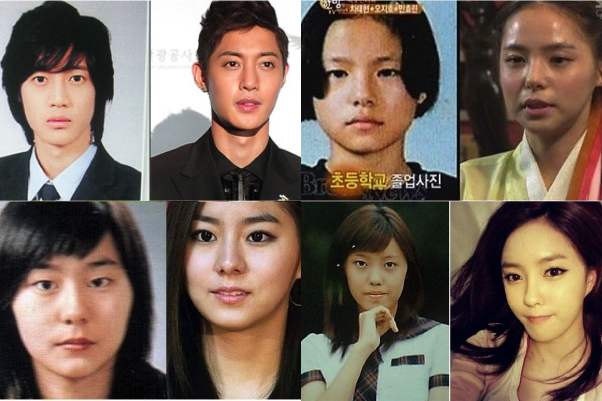 13 Korean Celebrities Who Have Admitted To Plastic Surgery