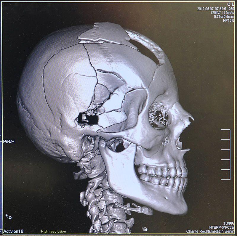 Virtopsy 3D Post mortem CT reconstruction: gunshot wound to the head ...