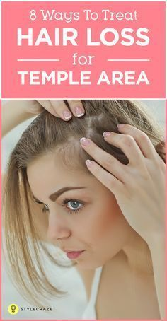 8 Simple Ways To Treat Hair Loss At The Temples Temple Hair Loss Treat Hair Loss Hair Loss Remedies