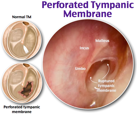 Perforated Tympanic Membrane Rosh Review | Family Medicine ...