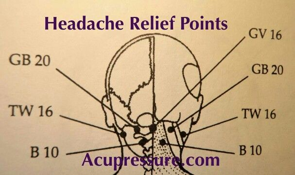 9 Acu Points for 4 Types of Headaches