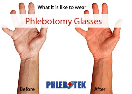 wearing O2Amp phlebotomy glasses this would be perfect on the - phlebotomist duties resume