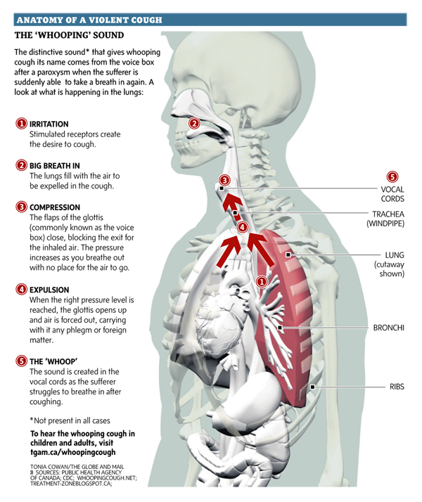 Anatomy of a violent cough: The \'whooping\' sound. Graphic by Tonia ...