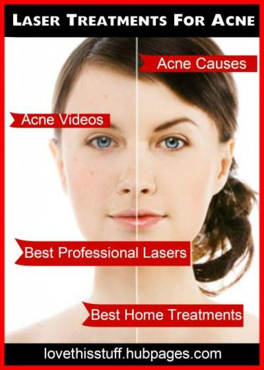 Best lasers for acne at the salon and at home. #skincare #laser #treatment #tips