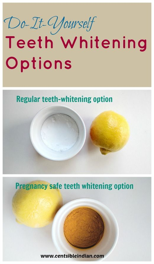 At Home Diy Teeth Whitening Options My Personal Care Teeth