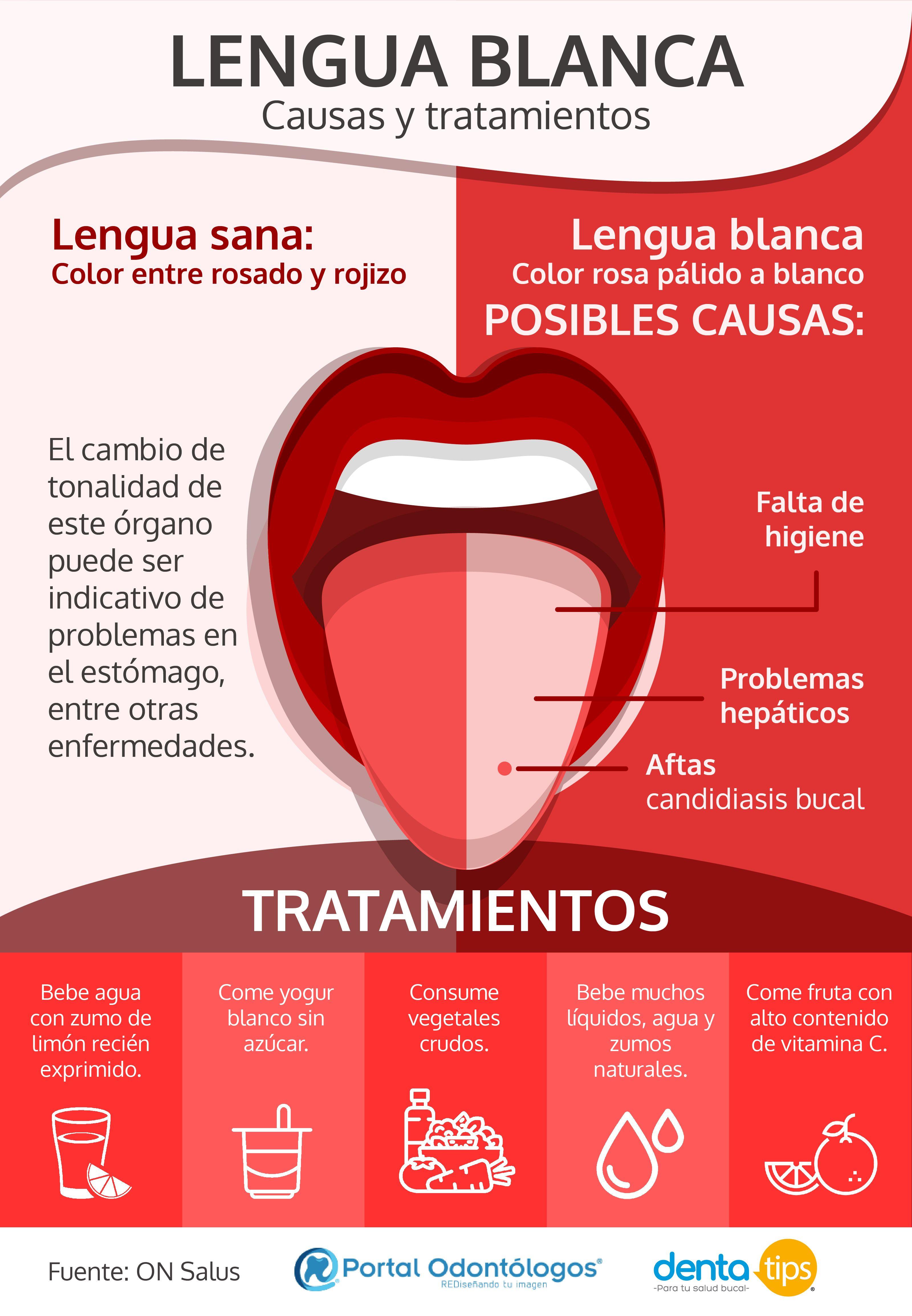 Lengua Blanca Causas Y Tratamientos Escuela De Higiene Dental Cuidado Dental Higienista Dental