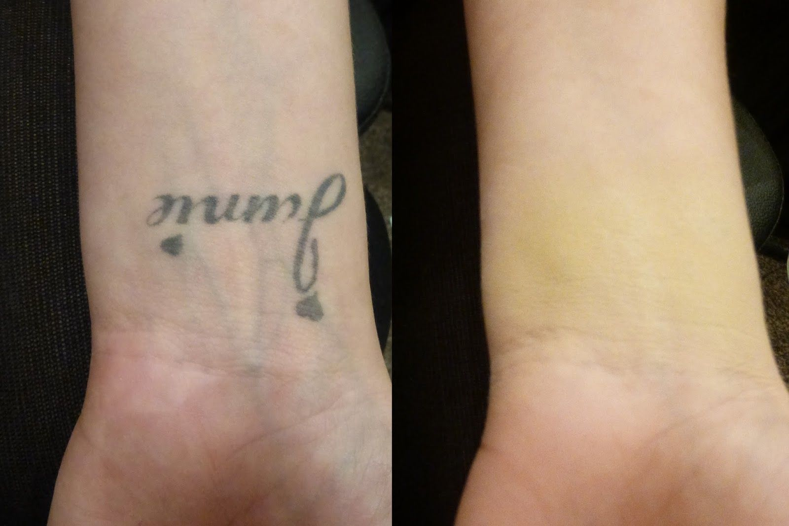 Tattoo Cover Up Before and After Veil Cover Cream Dark