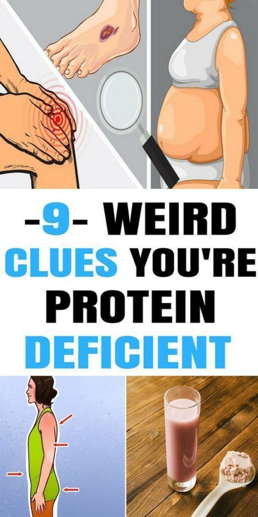 You Probably Wouldn't Know You Are Protein Deficient, Check These Signs To Know In Future!!!  #beaut...