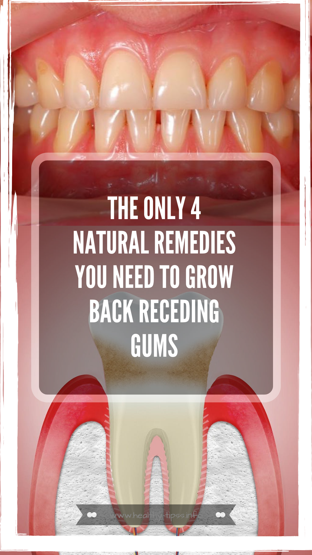 THE ONLY 4 NATURAL REMEDIES YOU NEED TO GROW BACK RECEDING