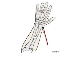 STEP 4 Acupressure Point Lu7 - Start with a less painful