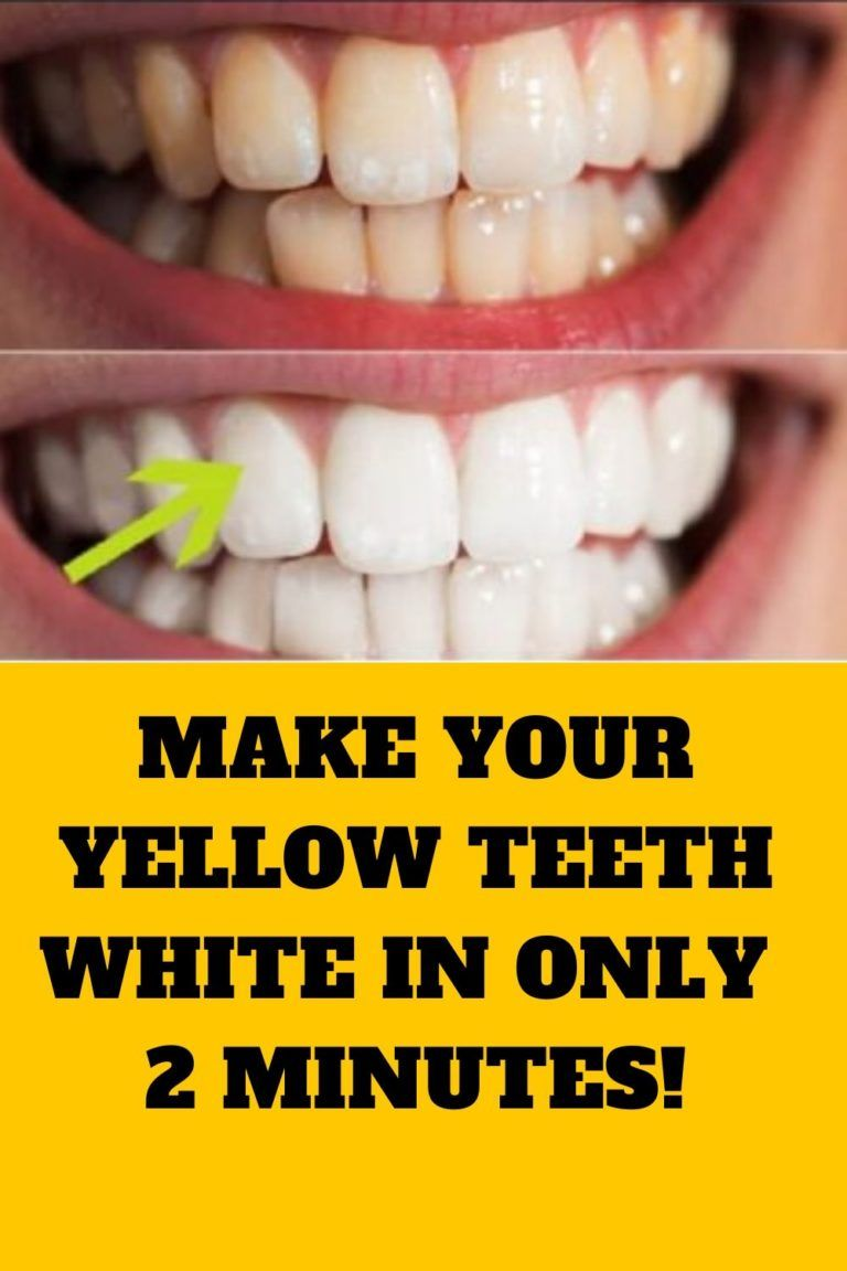 NOW YOU CAN MAKE YOUR YELLOW TEETH WHITE IN ONLY 2 MINUTES
